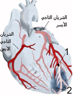 8b1843dd2 الشريانان التاجيان الأيمن والأيسر يغذيان عضلة القلب نفسها كي يعمل القلب.  رسم يبيّن إحتشاء عضلة