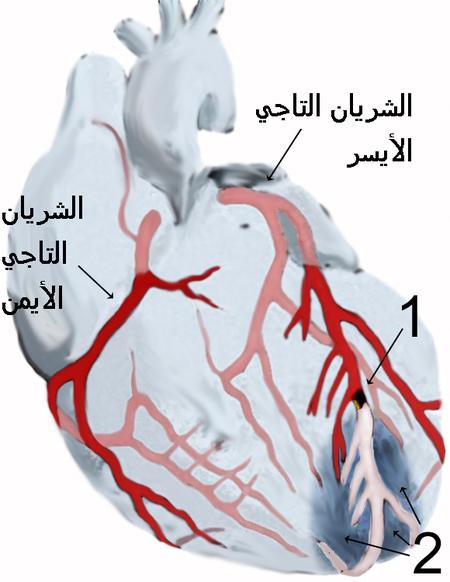 الشريانان التاجيان الأيمن والأيسر يغذيان عضلة القلب نفسها كي يعمل القلب. رسم يبيّن إحتشاء عضلة القلب، وعدم وصول الدم لجزء من عضلة القلب خلال الشريان التاجي الأيسر، بينما الشريان التاجي الأيمن مبين بصورة سليمة في الرسم أعلاه: المنطقة (1) فيها انسداد موضّح باللون الأسود داخل فرع من الشريان التاجي الأيسر الذي يُغذي الجزء السفلي من عضلة القلب. المنطقة (2) هي الجدار الأمامي لعضلة القلب، والذي لا يصله الدم بعد الإنسداد الحاصل في المنطقة (1)، ويُمكن رؤية الشريان من بعد الإنسداد وقد تغير لونه لنقص كمية الدم المارّ به، وكذلك لون المنطقة أسفل القلب المتأثرة بإنسداد الشريان متغير نتيجة نقص التروية الدموية وبالتالي نقص إمداد الأكسجين.
