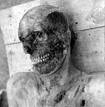 Azeri man with stripped by armenians skin of face from Hocali.jpg