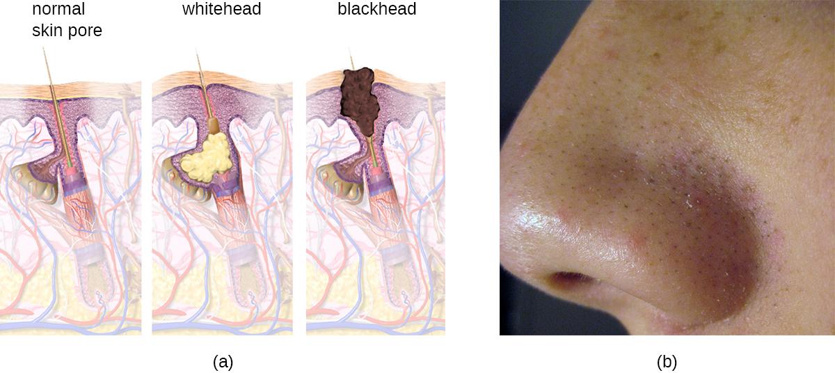 OSC Microbio 21 02 acne.jpg