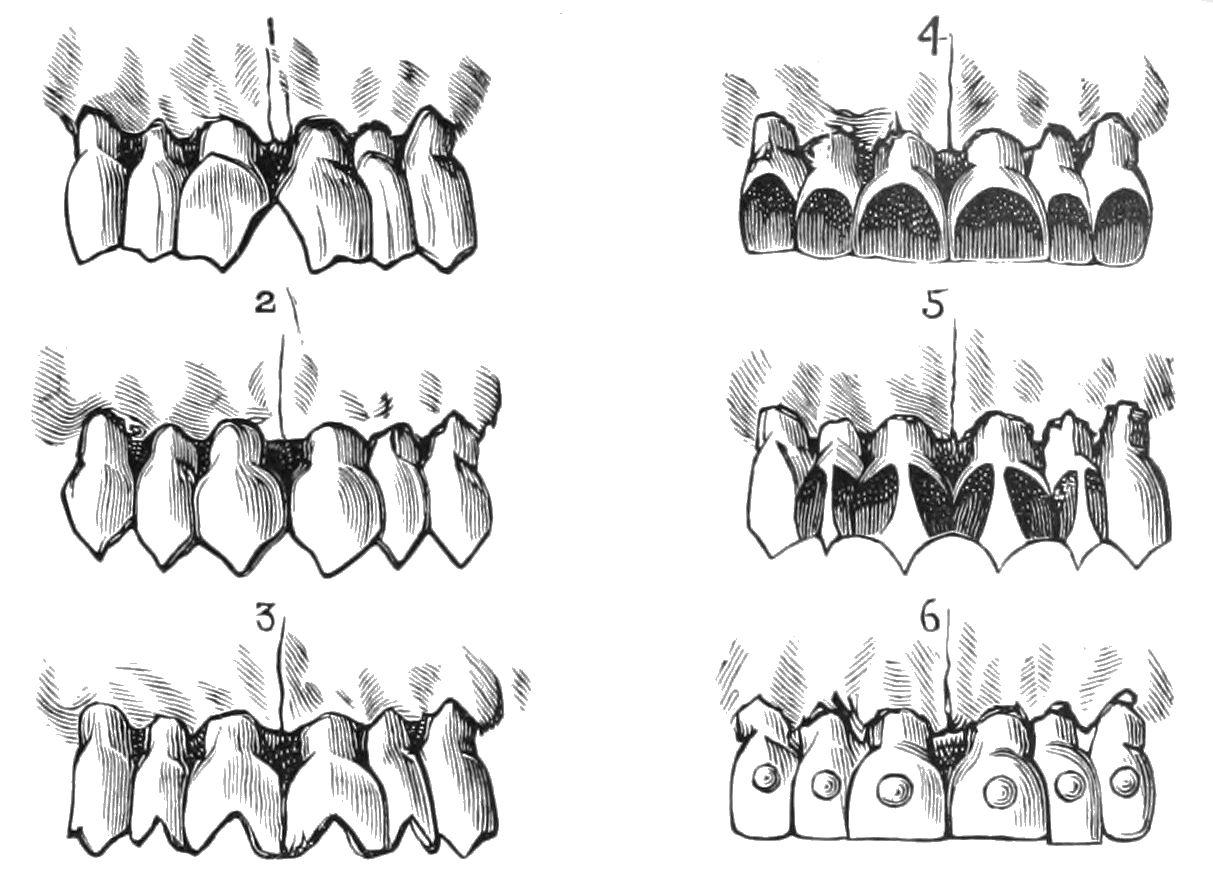 PSM V39 D509 Malaysian examples of tooth filing.jpg