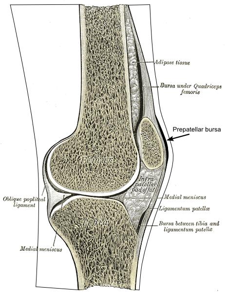 trochanteric bursa steroid injection