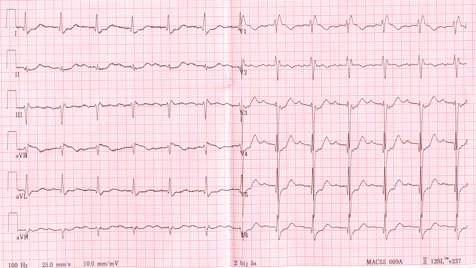 heart block Disease definition familial progressive cardiac conduction defect (pccd) is a hereditary cardiac conduction disorder that may progress to complete atrioventricular (av) block the disease is either asymptomatic or manifests as dyspnea, dizziness, syncope, abdominal pain, heart failure or sudden death.