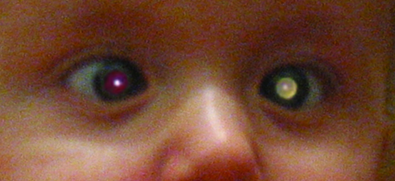A child with a white eye reflection as a result of retinoblastoma