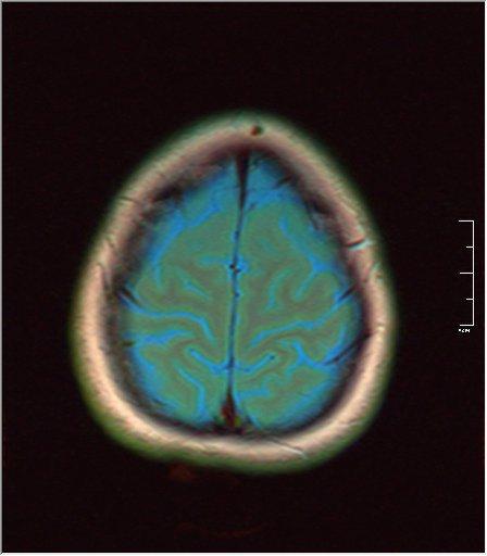 Brain MRI 0035 03 t1 pd t2 41f.jpg