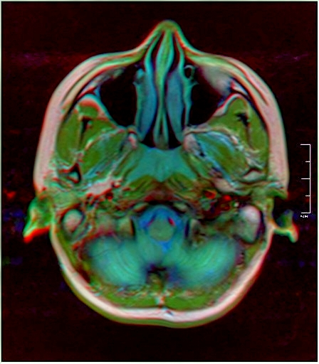 Color Brain MRI 0284 19.jpg
