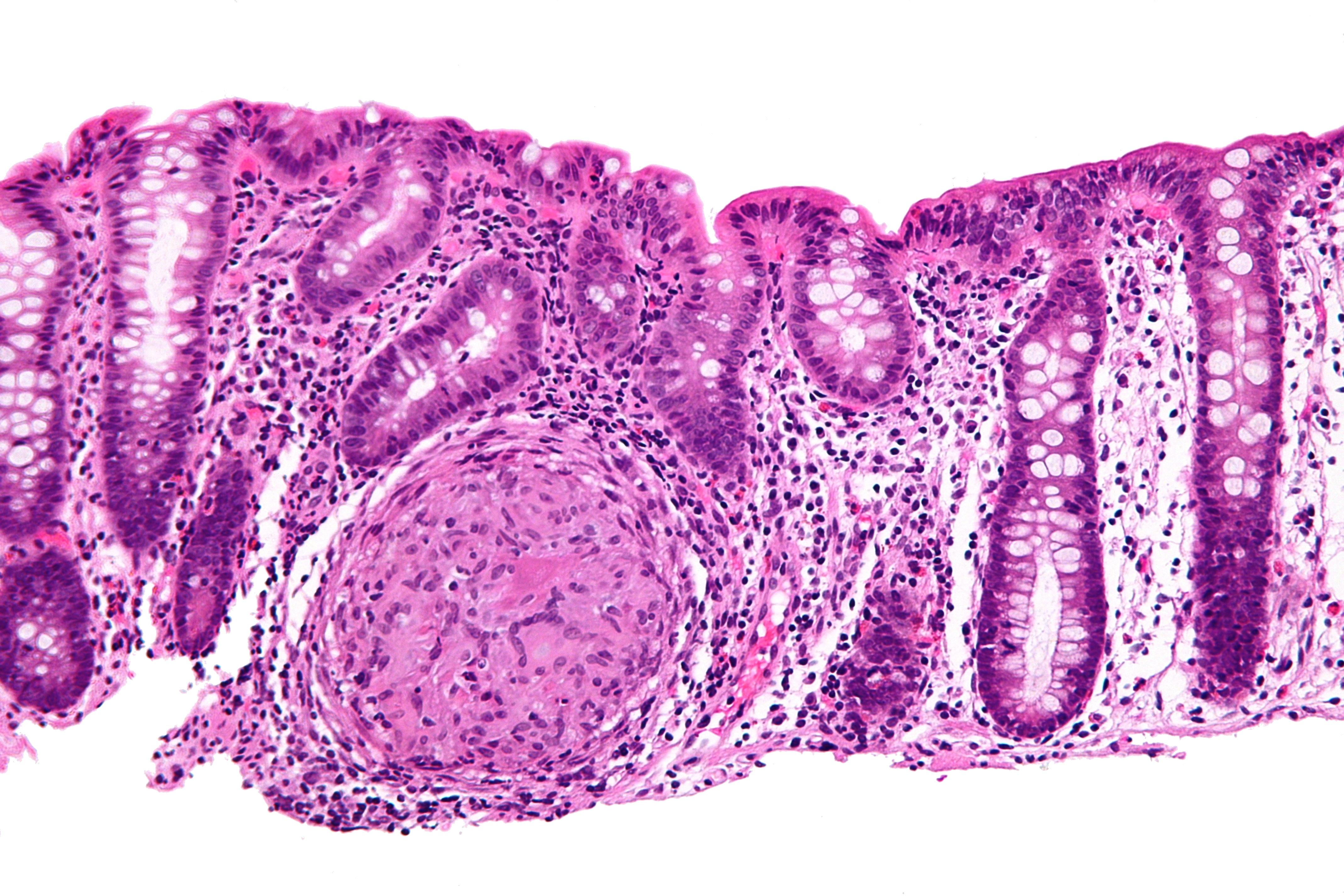 Colon Cancer 3 Inch Tumor