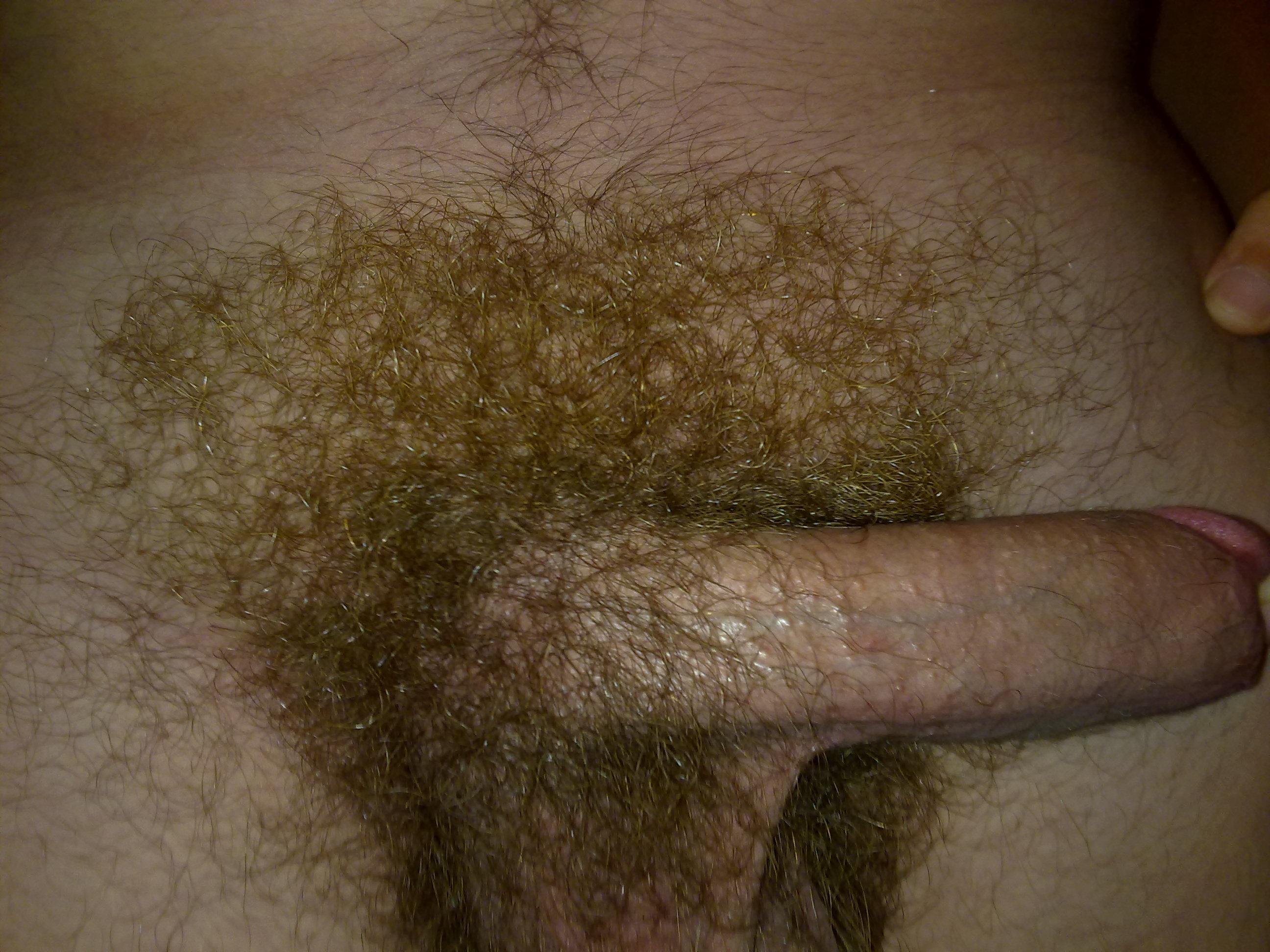 Is hair on my penis normal