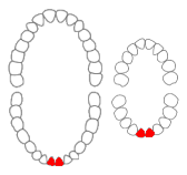 Mandibular central incisors01-01-06.png