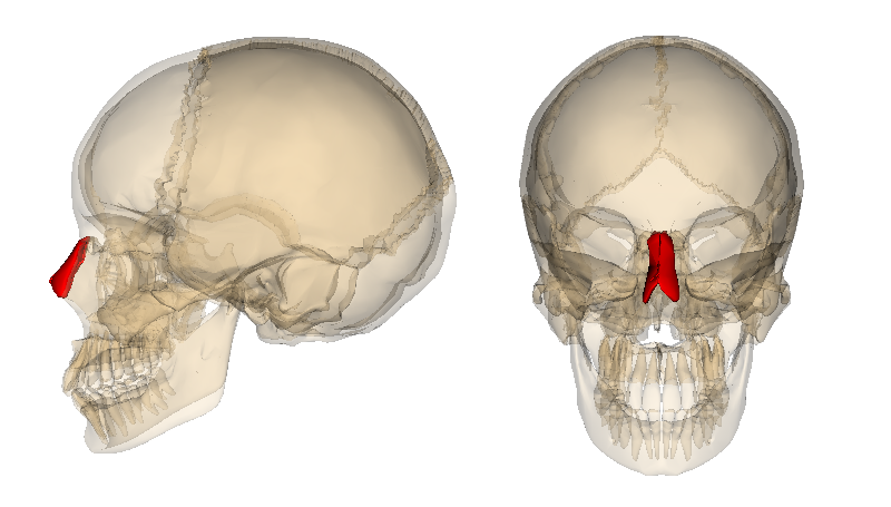 Nasal Bone (Red Colored) - Os Nasale - The nasal bone is not touched during septoplasty operation! - Can bruises occur after septoplasty operation? - Is an external nasal splint used after septoplasty operation? - There will be swelling seen after septoplasty operation? - Does the nose shape change after septoplasty operation?