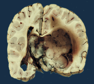 Хориоидпапиллома — Медицинская википедия