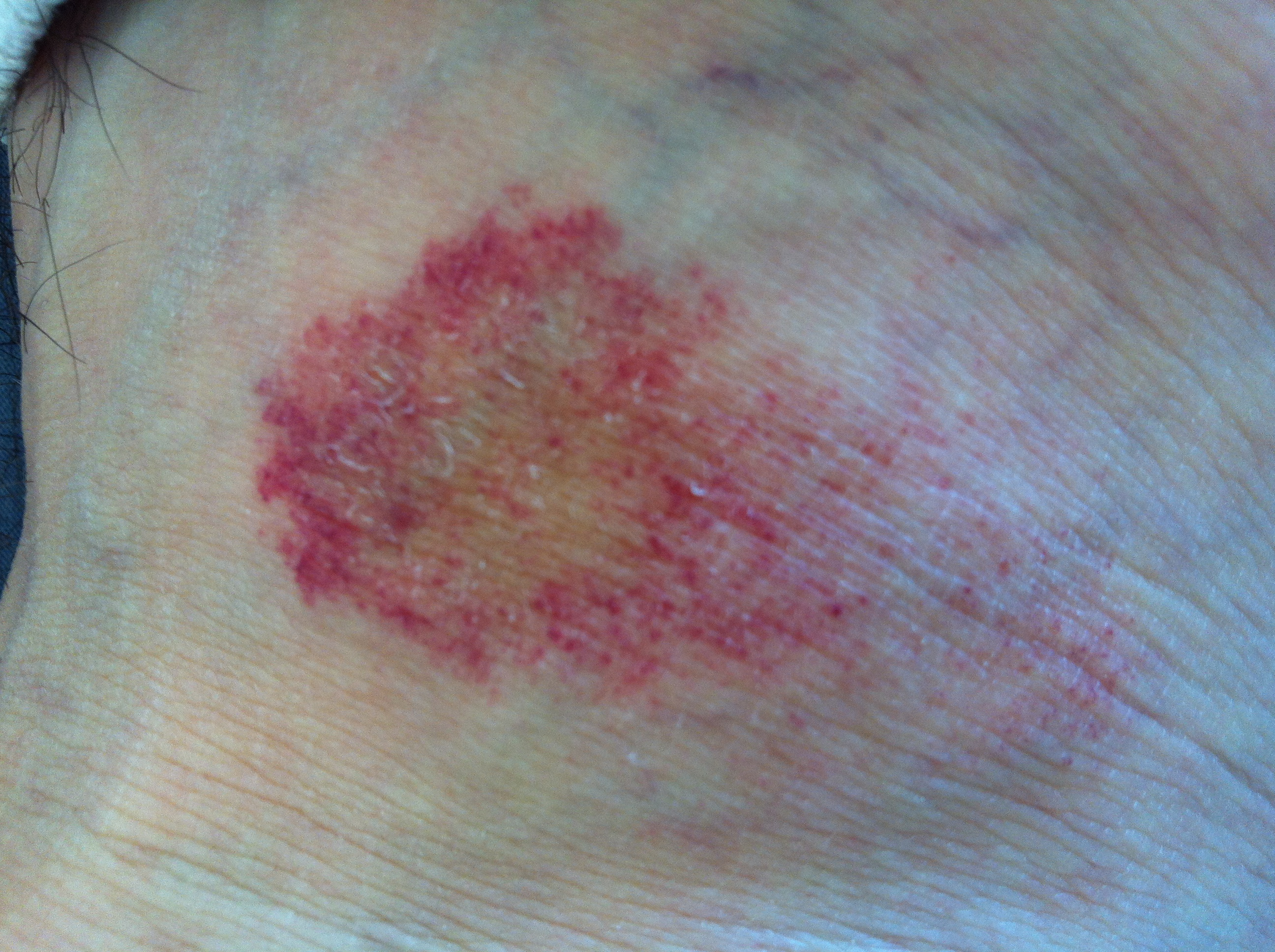 dermatitis steroidica rosaceiformis