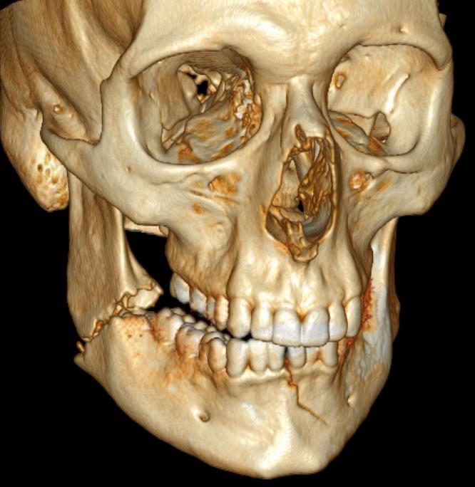 Mandibular fracture - Wikiwand