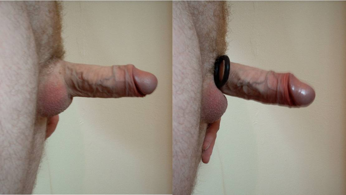 how to put on penis ring times creep