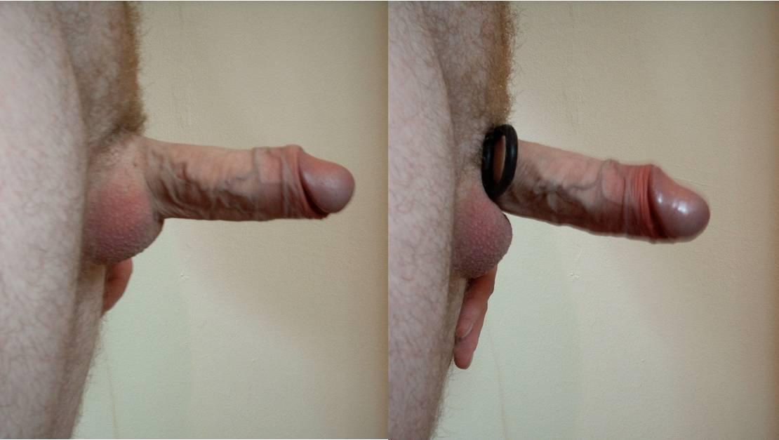 Cock Ring Wikipedia 2
