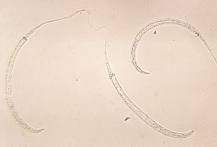 Breast infection larvae