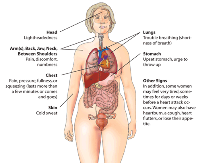 Range of myocardial infarction symptoms in women
