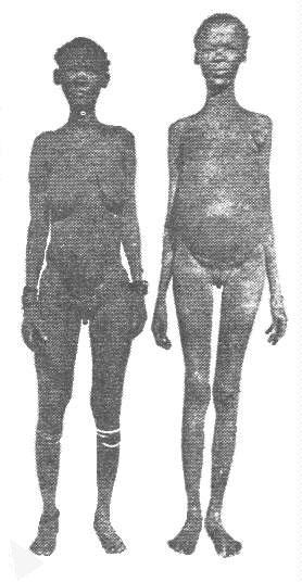 Foto zweier San-Frauen mit sichtbaren