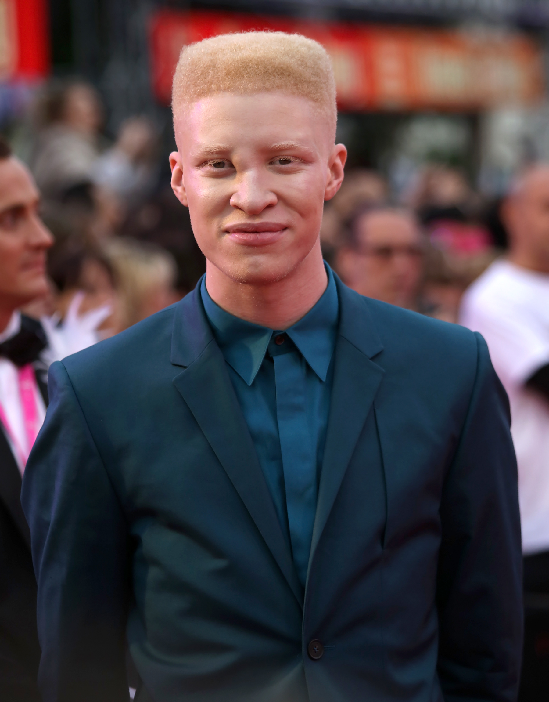 Shaun albino model nose