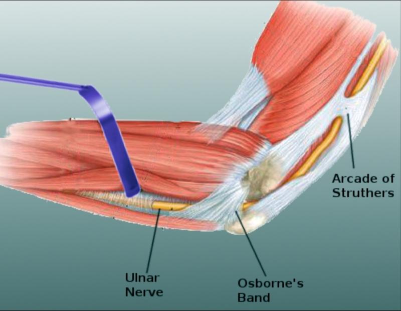 Fájdalom a könyökízület medialis epikondiljában. fejlesztés