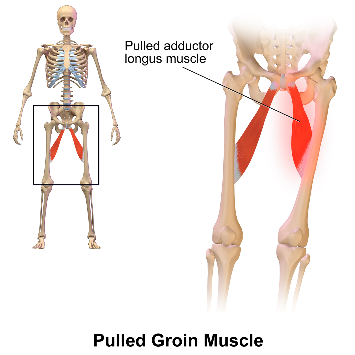 File Pulled Groin Muscle