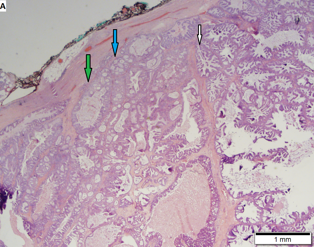 salivary duct carcinoma