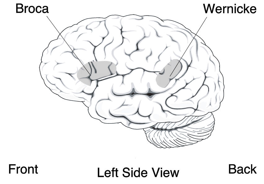 Diagram of the brain showing the location of Broca's area and Wernicke's area.