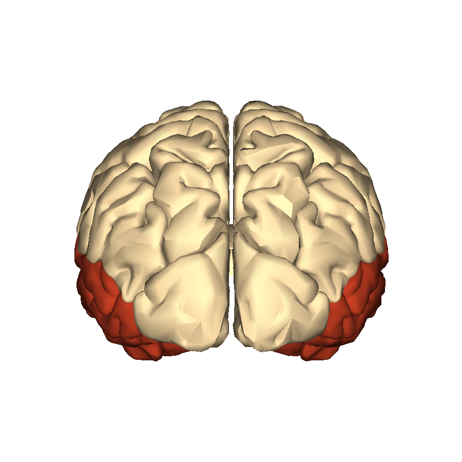 Filecerebrum Temporal Lobe Posterior Viewg Wikimedia Commons