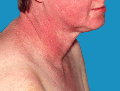 File:Dermatomyositis18.jpg