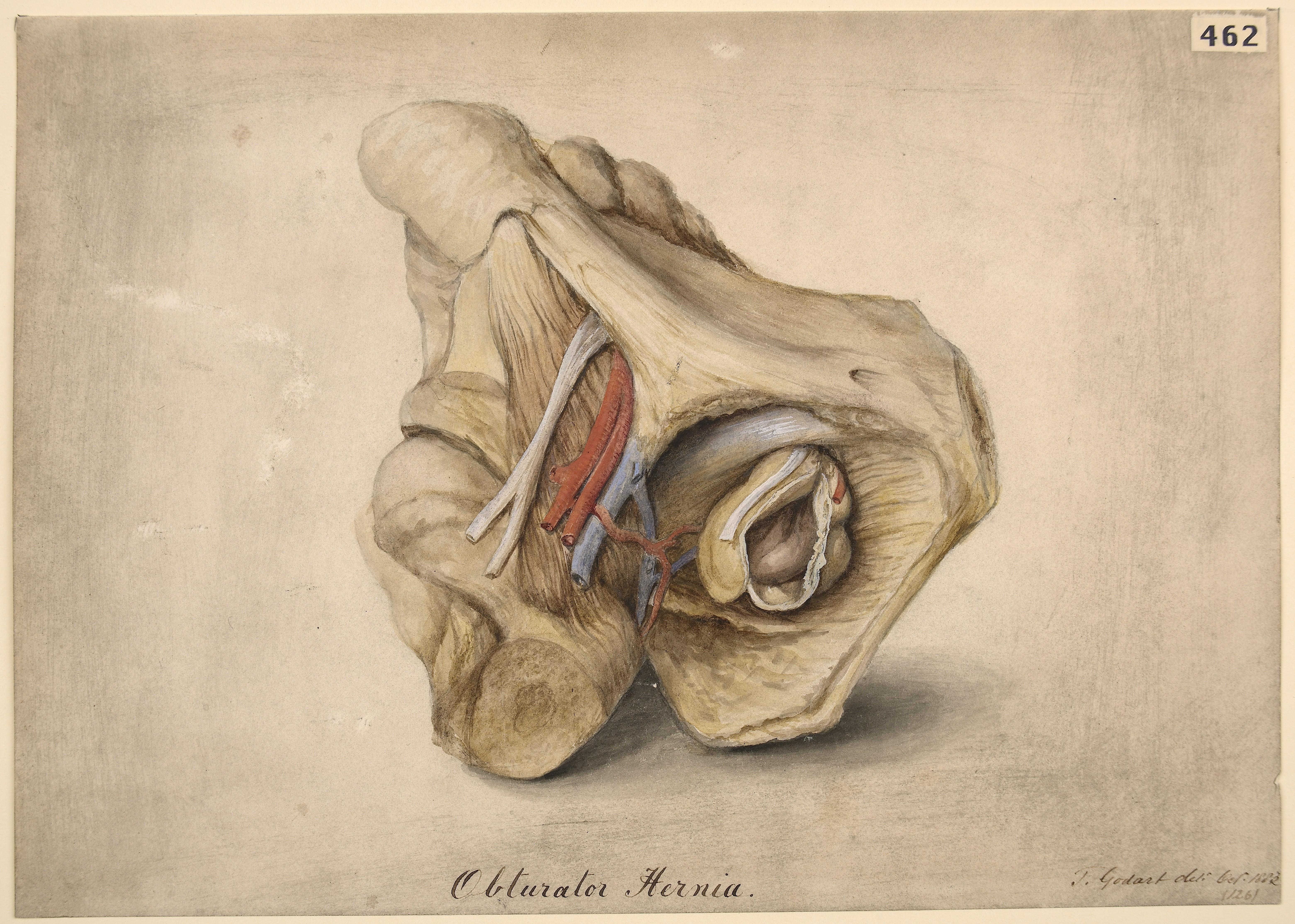 File:Obturator hernia Wellcome L0061626.jpg - Wikimedia Commons