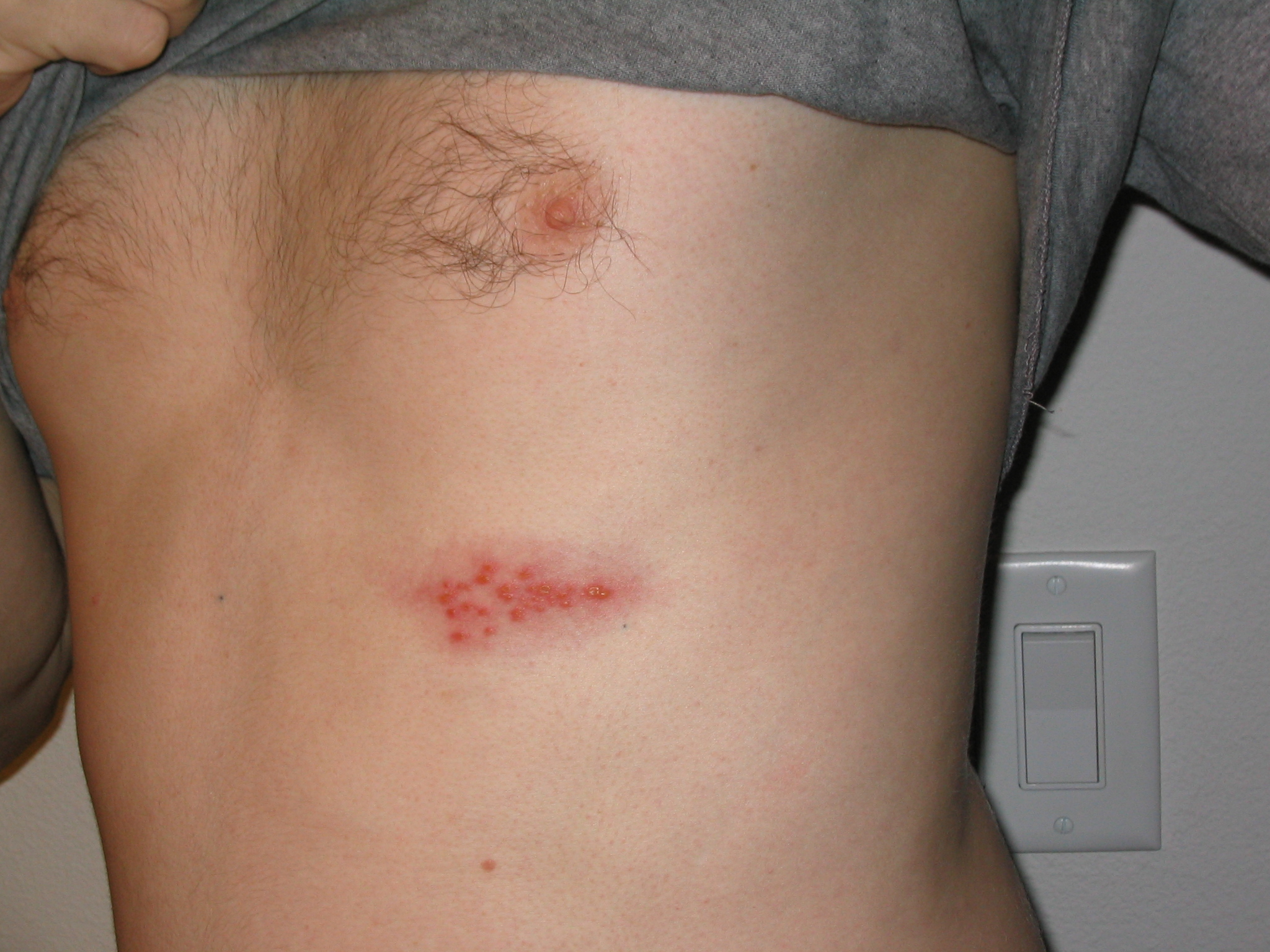 http://upload.wikimedia.org/wikipedia/commons/0/03/Shingles_on_the_chest.jpg