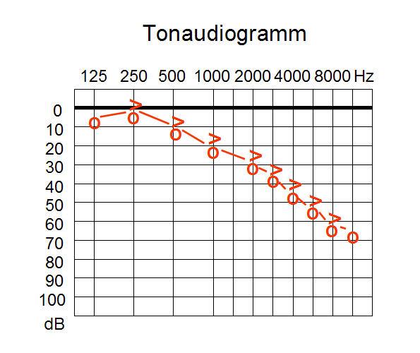 Tonaudiogramm_w_sens.jpg