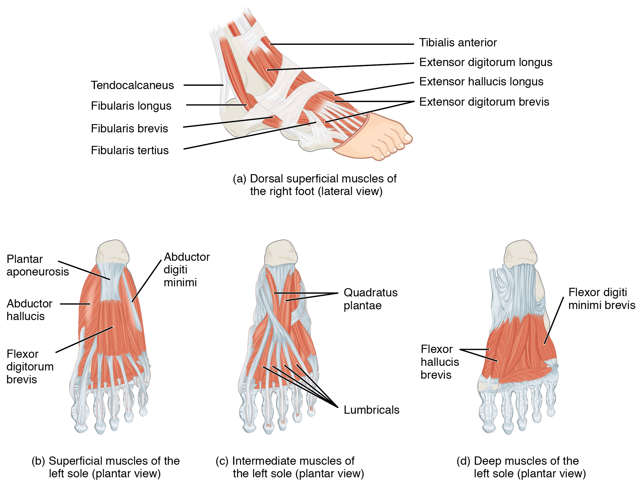 pes planus - foot muscles
