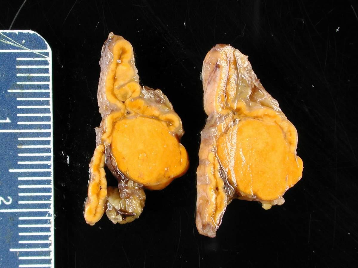 Small Adrenal Glands Dog Atrophy Veterinary