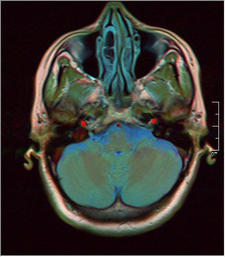 Brain MRI glioma 16.jpg
