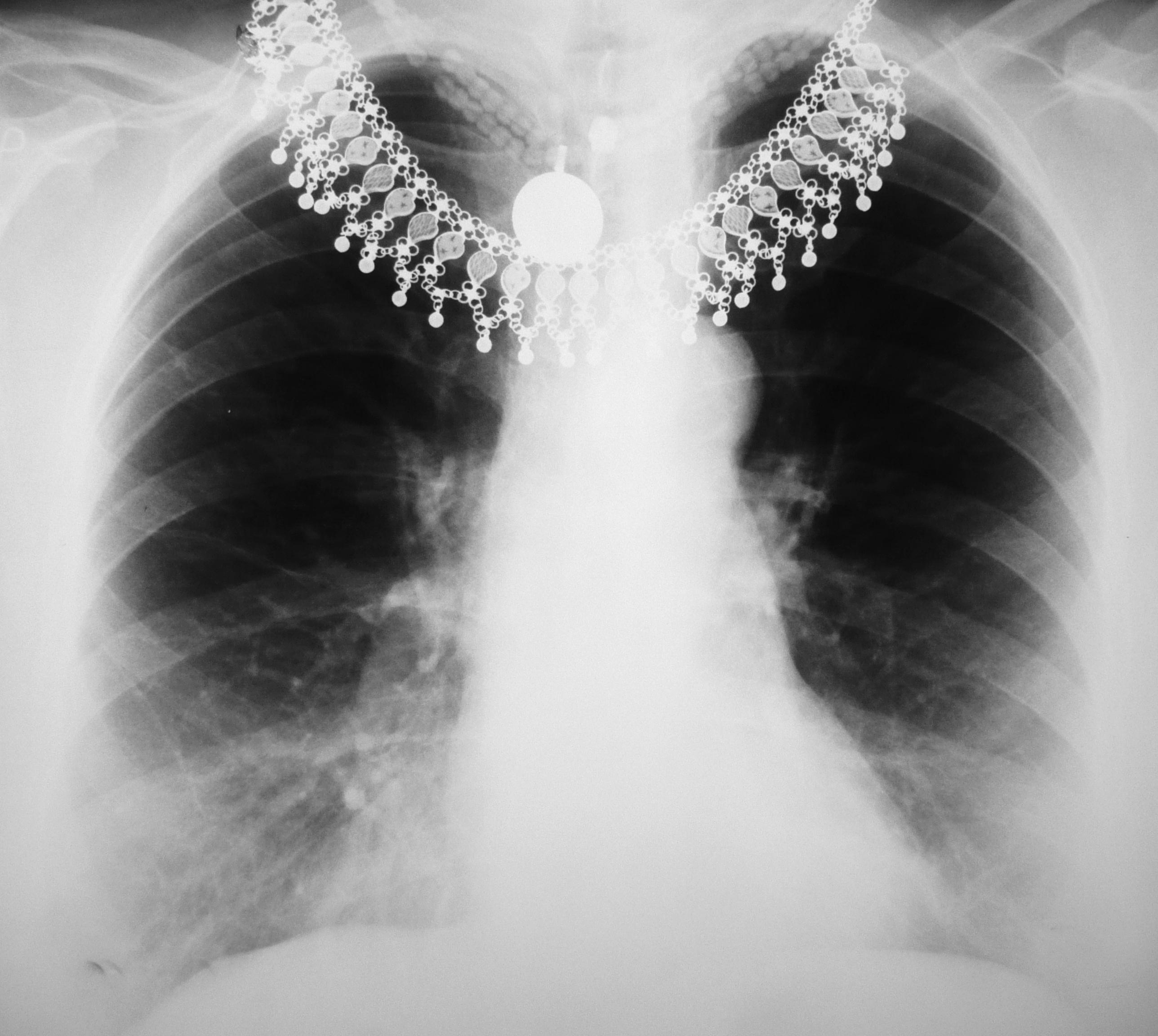 Description Chest X-ray 1300274 cr.jpg