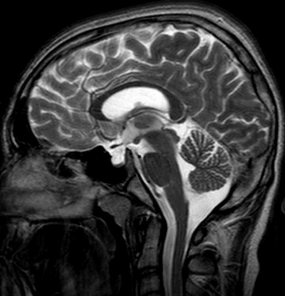 Empty-Sella-Syndrom – Wikipedia