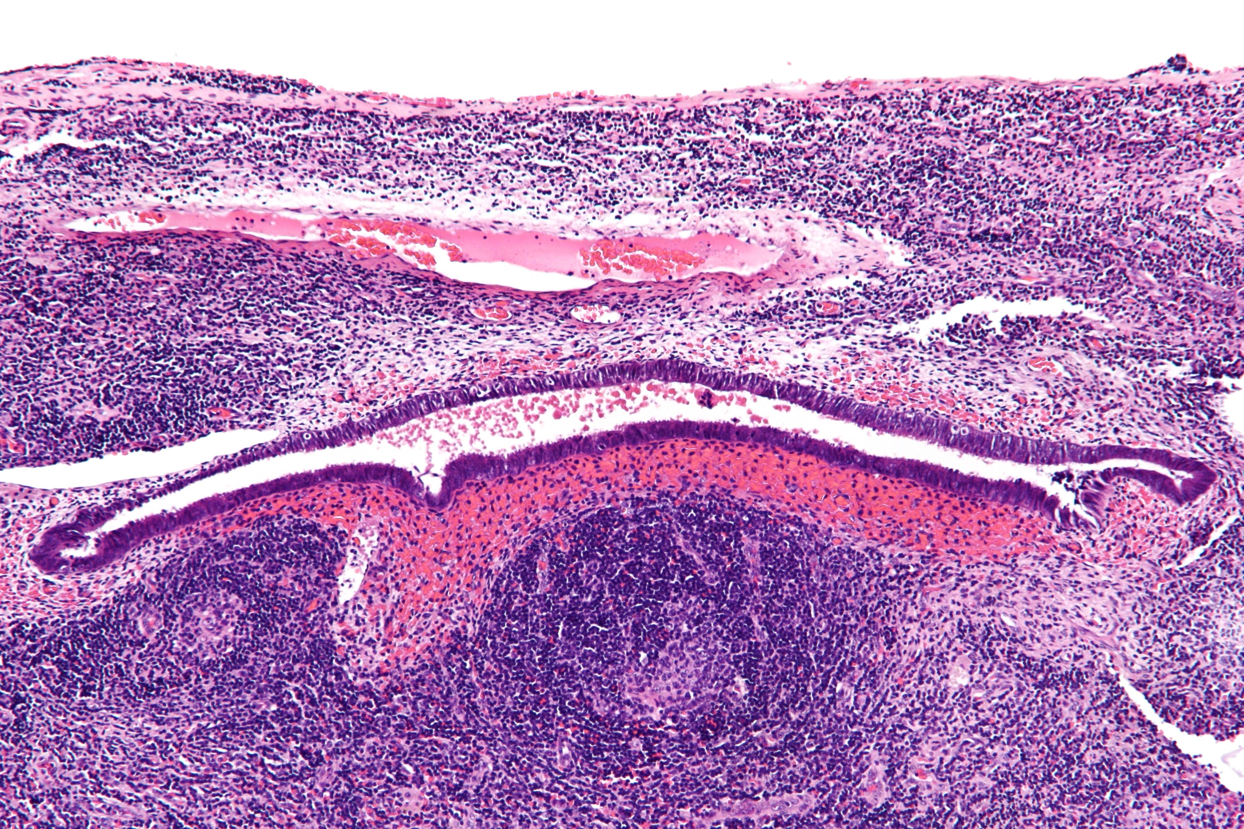 Image search endometriosis