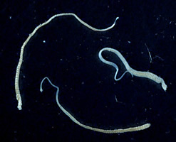 Three adult Hymenolepis nana tapeworms. Each t...