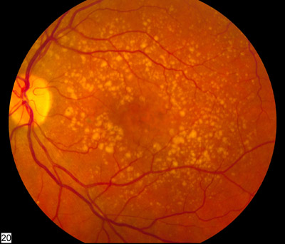 retina age-related macular degeneration fundus