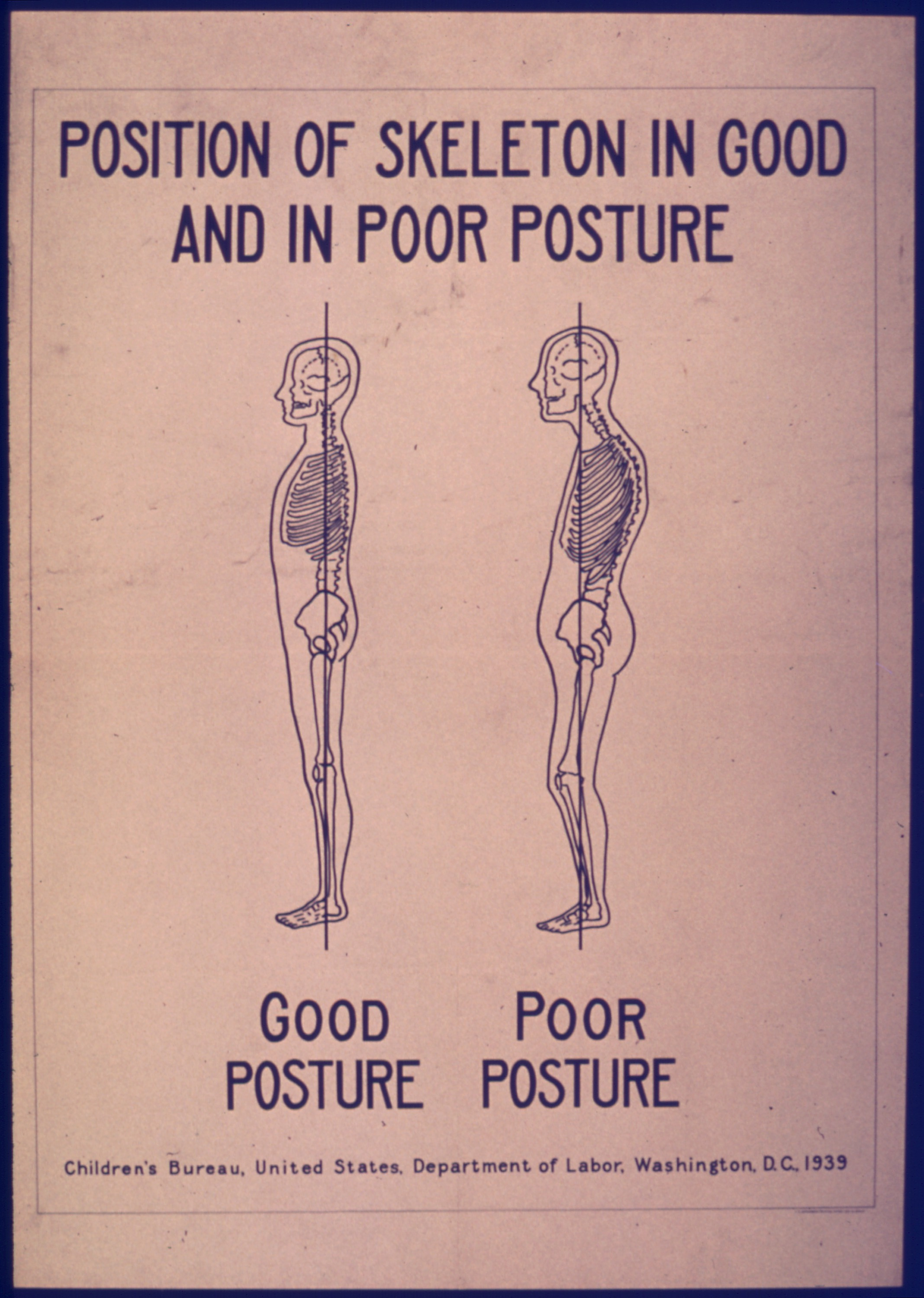 POSITION_OF_SKELETON_IN_GOOD_AND_POOR_POSTURE_-_NARA_-_515194