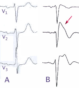 Brugada syndrome heart conduction disease that is characterized by abnormal electrocardiogram (ECG) findings and an increased risk of sudden cardiac death