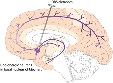 Deep brain stimulation wikipedia drawing of dbs electrodes deep in the brain side view ccuart Images