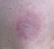 Circular rash, called erythema migrans, present in 80% cases, more or less clear