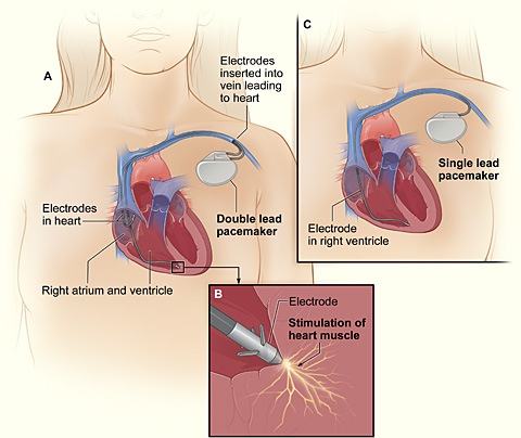 Pacemaker_NIH file pacemaker nih jpg wikimedia commons