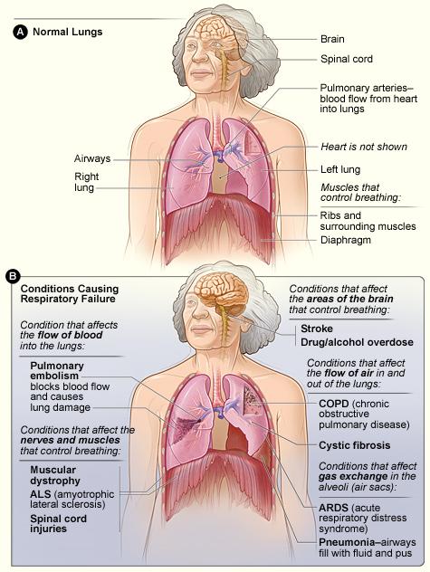Respiratory_failure