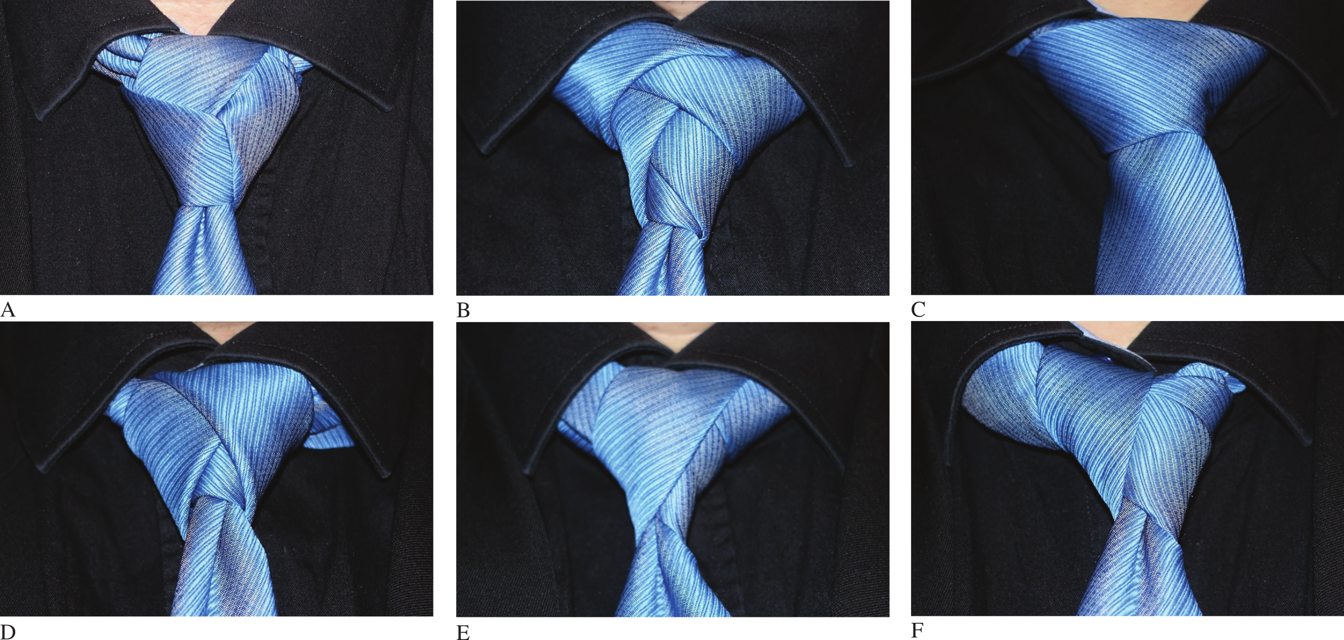 Horrific examples of (blue) tie knots against a black shirt.