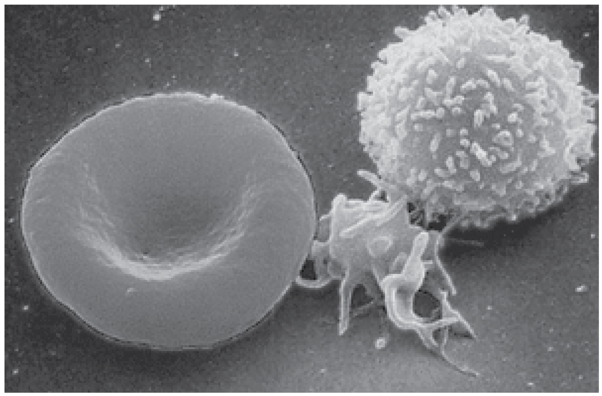 Medical Definition of White blood cell