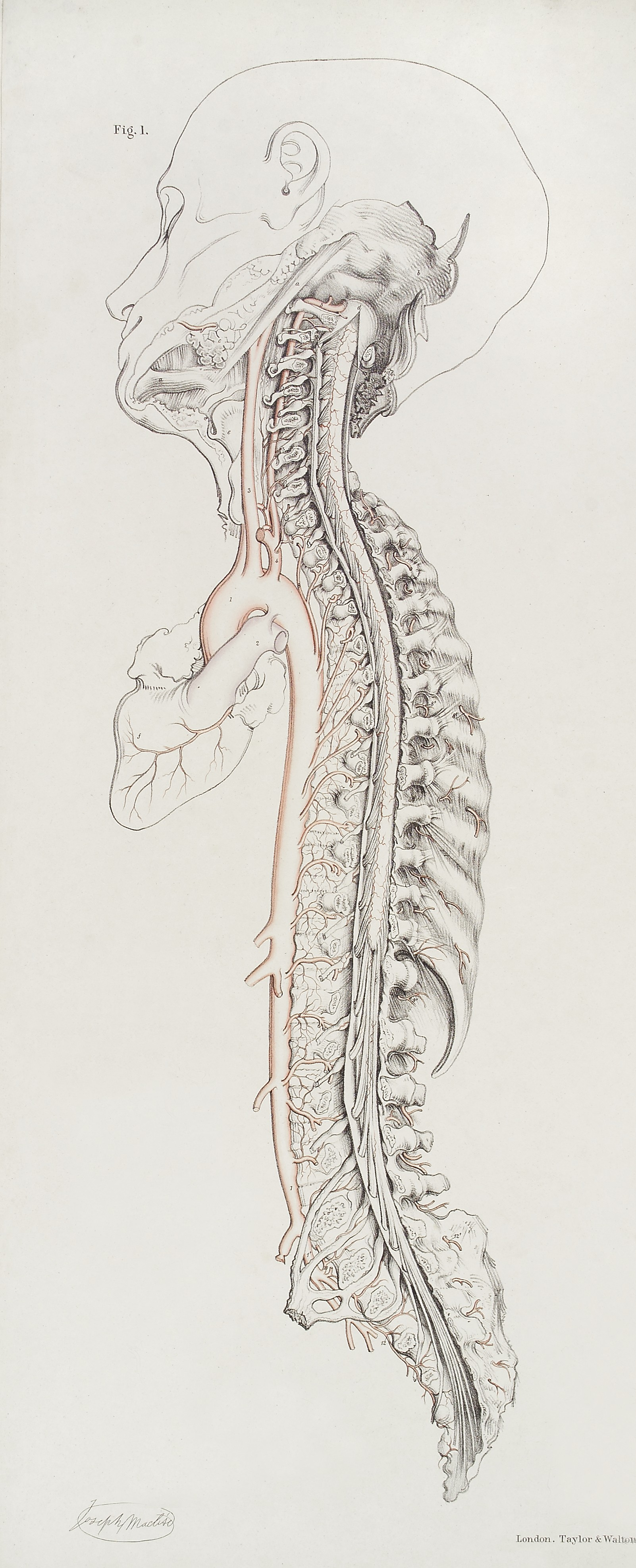 File:Arteries entering spinal canal Wellcome L0037451.jpg ...