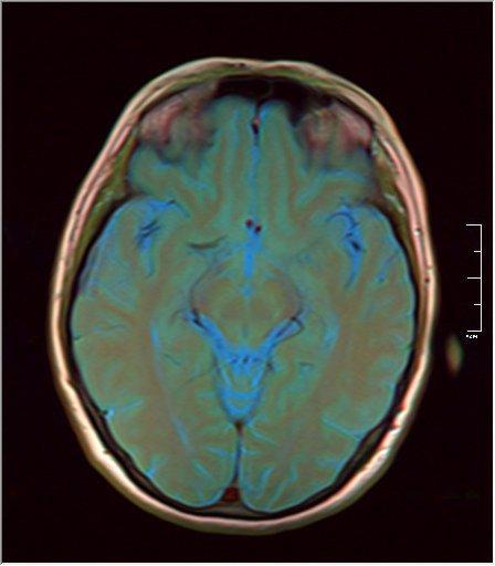 Brain MRI 0076 11.jpg